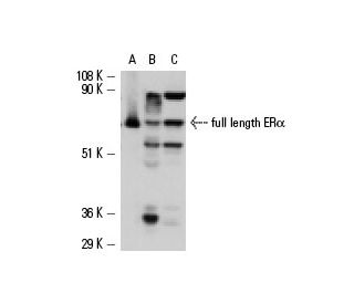 ER alpha (HC-20): sc-543. Western blot analysis of human recombinant ER alpha ...