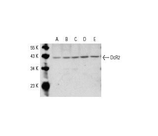 DcR2 (D-15): sc-11638. Western blot analysis of DcR2 expression in...