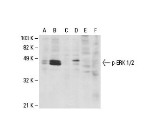Western blot analysis of phosphorylated ERK 1/2 expression in untreated...