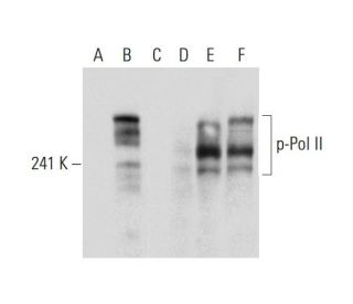 Western blot analysis of Pol II phosphorylation in untreated (A,D),...