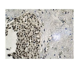 USF-1 (H-86): sc-8983. Immunoperoxidase staining of formalin fixed, paraffin-embedded human...