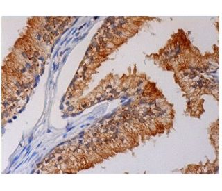 TIMP-1 (C-20): sc-6832. Immunoperoxidase staining of formalin fixed, paraffin-embedded human...