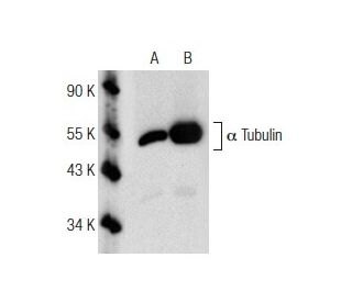 Western blot analysis of acetylated alpha Tubulin acetylation in untreated...