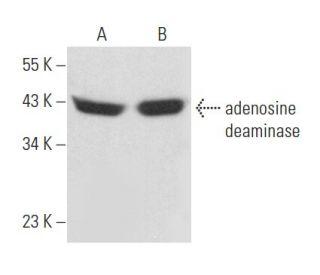 adenosine deaminase antibody d 4 scbt santa cruz biotechnology