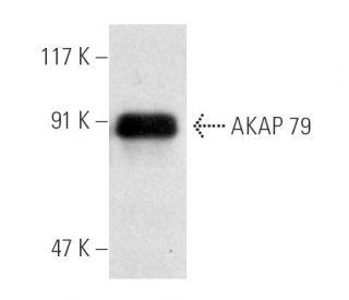 AKAP 79 (D-9): sc-17772. Western blot analysis of AKAP 79...
