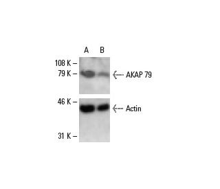 AKAP 79 siRNA (h): sc-29660. Western blot analysis of AKAP...
