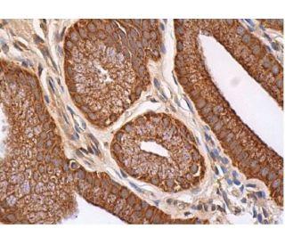 ALDH1/2 (H-8): sc-166362. Immunoperoxidase staining of formalin fixed, paraffin-embedded...