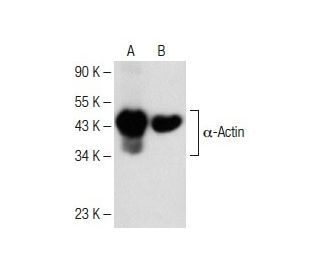 alpha-Actin (1A4): sc-32251. Western blot analysis of alpha-Actin expression in...