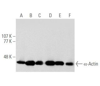 alpha-Actin (1A4) HRP: sc-32251 HRP. Direct western blot analysis of...