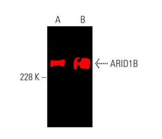 ARID1B Antibody (KMN1) | SCBT ...
