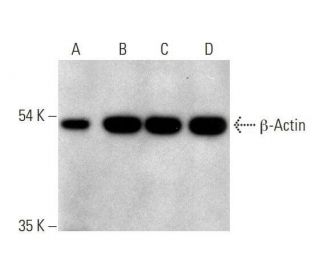 chicken anti-mouse IgG-HRP: sc-2962. Western blot analysis of beta-Actin expression...