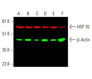 Simultaneous infrared western blot analysis of β-Actin expression, detected with β...