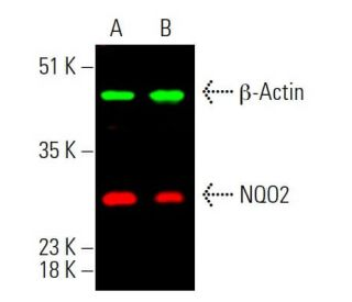 Simultaneous infrared western analysis of β-Actin expression, detected with β-Actin...