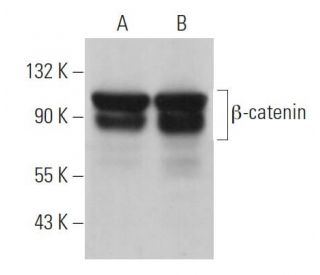 beta-catenin (12F7): sc-59737. Western blot analysis of beta-catenin expression in...
