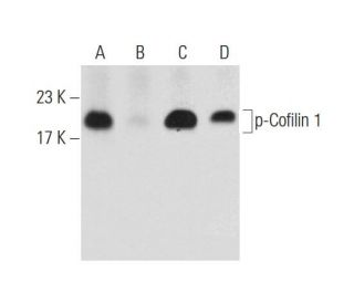bpV(pic): sc-221379. Western blot analysis of Cofilin 1 phosphorylation in...
