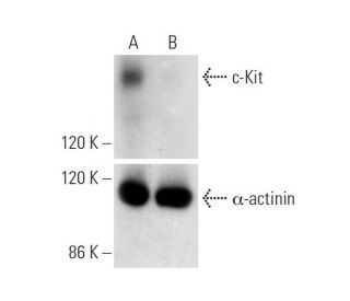 c-Kit CRISPR/Cas9 KO Plasmid (h): sc-400106. Western blot analysis of...