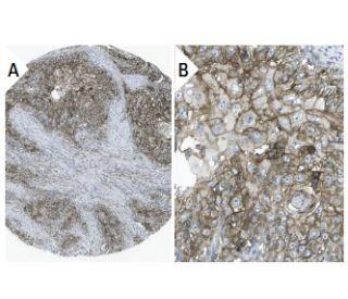 CD47 (B6H12): sc-12730. Immunoperoxidase staining of formalin fixed, paraffin-embedded human...