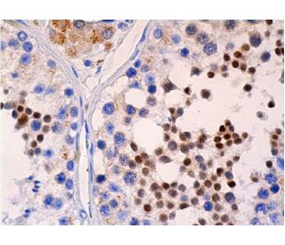 Cdc2 p34 (17): sc-54. Immunoperoxidase detection of Cdc2 p34 in...