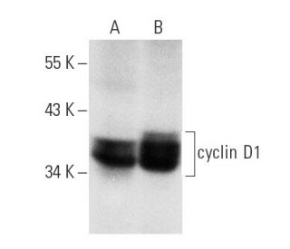 cyclin D1 (DCS-6): sc-20044. Western blot analysis of cyclin D1...