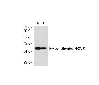 demethylated-PP2A-C (4i57): sc-80990. Western blot analysis of demethylated-PP2A-C expression in...