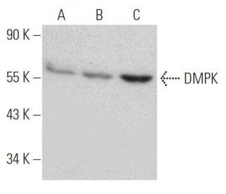 DMPK Antibody (9-RY26)   SCBT - Santa Cruz Biotechnology