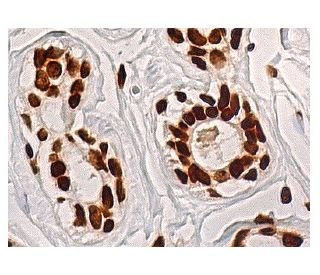 Fibrillarin (G-4): sc-166021. Immunoperoxidase staining of formalin fixed, paraffin-embedded human...