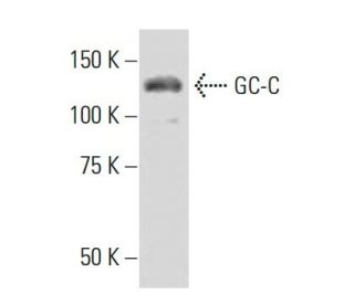 GC-C (537): sc-100302. Western blot analysis of GC-C expression in...