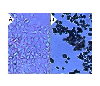 Geneticin (G418) Sulfate: sc-29065. Cultured HeLa cells treated with 0 mu g/ml...
