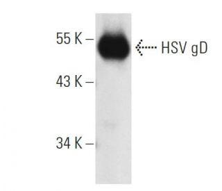 HSV-1 gD Antibody (DL6)   SCBT - Santa Cruz Biotechnology