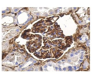 ICAM-1 (G-5): sc-8439. Immunoperoxidase staining of formalin fixed, paraffin-embedded human...