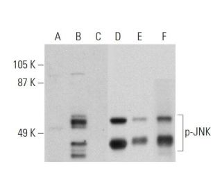 Western blot analysis of JNK phosphorylation in untreated (A,D), anisomycin...