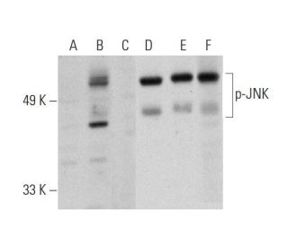 Western blot analysis of JNK phosphorylation in untreated (A,D), UV...