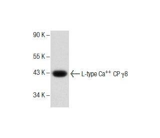 L-type Ca sup ++ CP gamma 8 (E-13): sc-168396. Western blot analysis of...