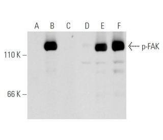 Western blot analysis of FAK phosphorylation in non-transfected: sc-117752 (A,D),...