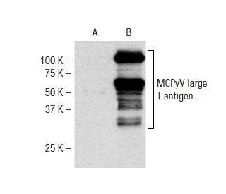 MCPyV large T-antigen (CM2B4): sc-136172. Western blot analysis of MCPyV...