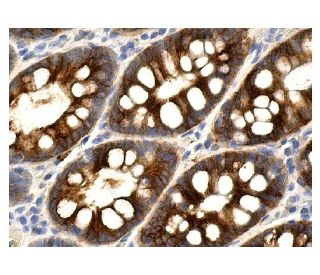Mucin 4 (8G7): sc-53945. Immunoperoxidase staining of formalin fixed, paraffin-embedded...