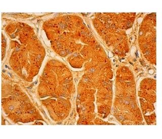 Mucin 5AC (45M1): sc-21701. Immunoperoxidase staining of formalin fixed, paraffin-embedded...