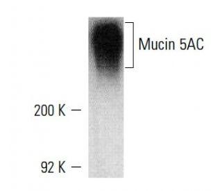 Mucin 5AC (45M1): sc-21701. Western blot analysis of Mucin 5AC...