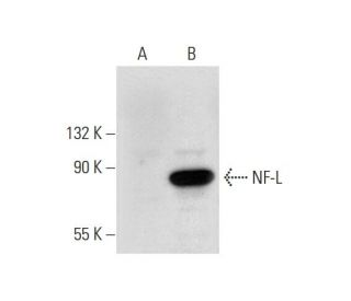 NF-L (DA2): sc-58559. Western blot analysis of NF-L expression in...