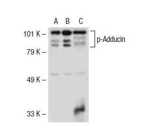 p-Adducin (Ser 662): sc-12614. Western blot analysis of Adducin beta ...