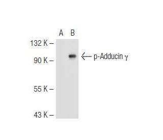 p-Adducin (Ser 662): sc-12614. Western blot analysis of Adducin gamma ...
