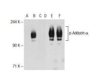 Western blot analysis of Adducin alpha phosphorylation in non-transfected: sc-117752...
