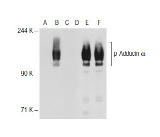 Western blot analysis of Adducin alpha phosphorylation in non-transfected: sc-117752...