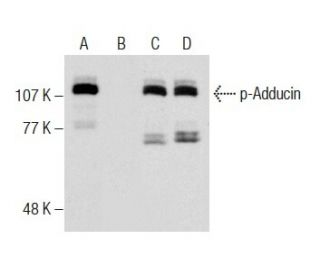 Western blot analysis of Adducin phosphorylation in untreated (A,C) and...