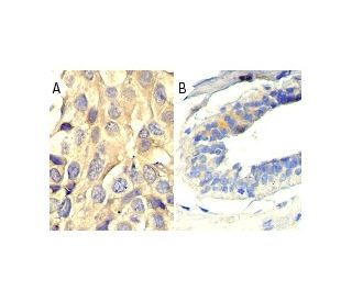 p-Thr (H-2): sc-5267. Immunoperoxidase staining of formalin fixed, paraffin-embedded human...