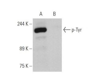 p-Tyr (PY20) HRP: sc-508 HRP. Direct western blot analysis of...