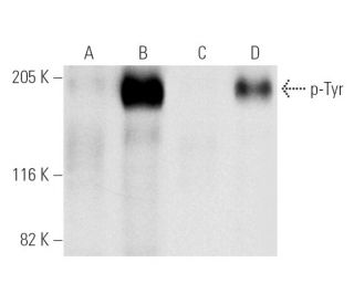 Western blot analysis of p-Tyr phosphorylation in untreated (A,C) and...