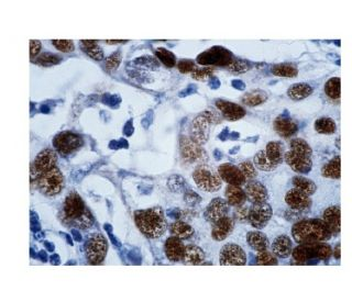 p53 (DO-1): sc-126. Immunoperoxidase staining of formalin-fixed, paraffin-embedded human breast...