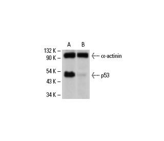 p53 siRNA (h): sc-29435. Western blot analysis of p53 expression...