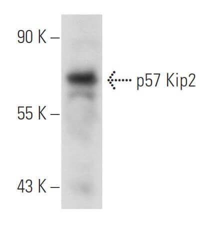 kp39 is